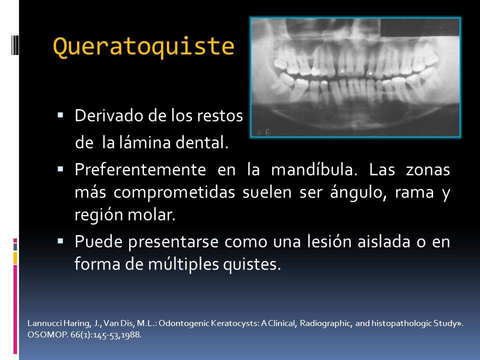 Queratoquiste Derivado de los restos de la lámina dental. Preferentemente en la mandíbula. Las zonas más comprometidas suelen ser ángulo, rama y regió