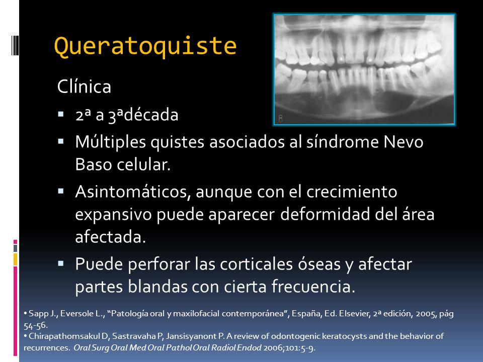 Clínica 2ª a 3ªdécada Múltiples quistes asociados al síndrome Nevo Baso celular. Asintomáticos, aunque con el crecimiento expansivo puede aparecer def