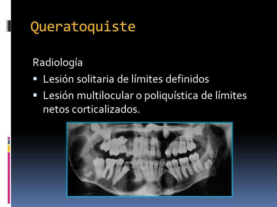 Radiología Lesión solitaria de límites definidos Lesión multilocular o poliquística de límites netos corticalizados. Queratoquiste