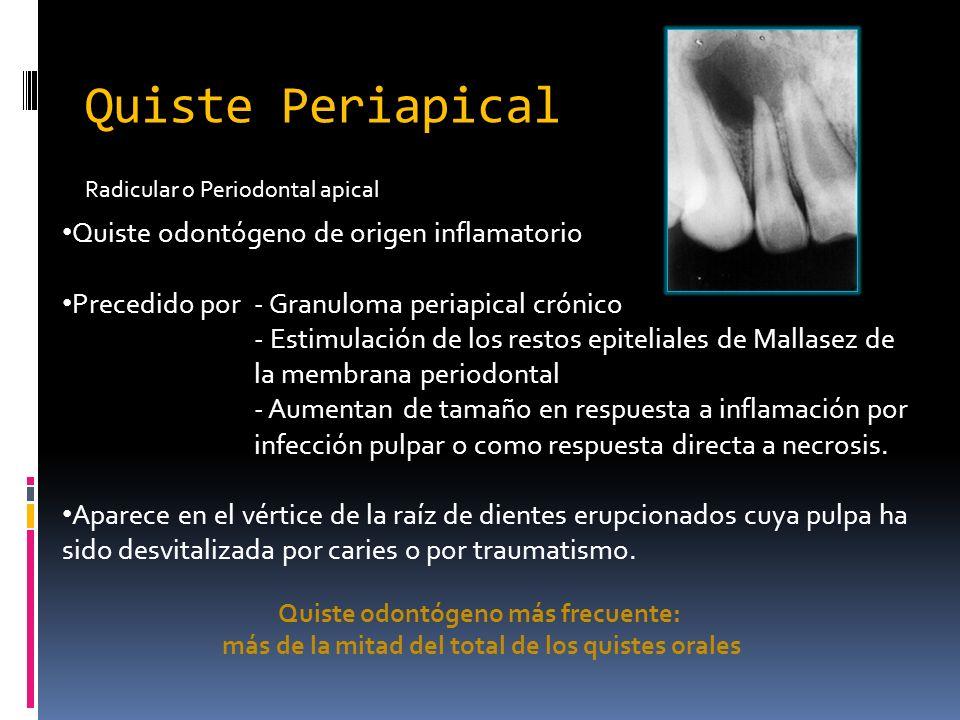 Quiste Periapical Radicular o Periodontal apical Quiste odontógeno de origen inflamatorio Precedido por - Granuloma periapical crónico - Estimulación