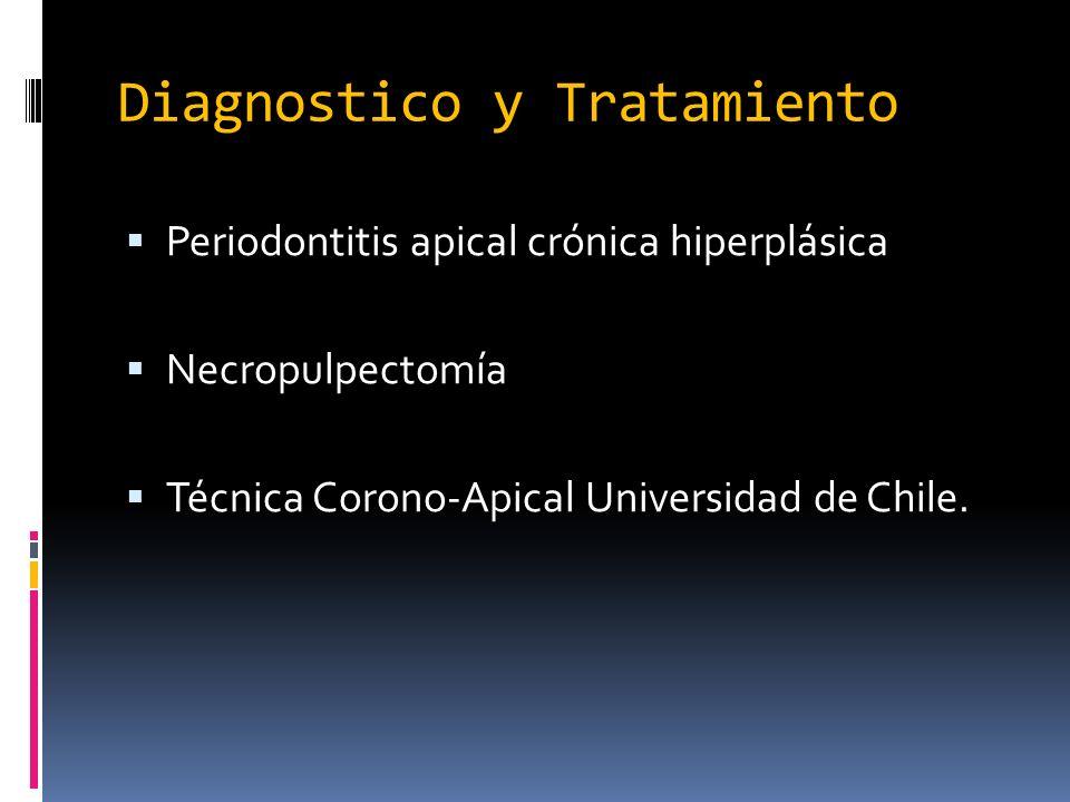 Diagnostico y Tratamiento Periodontitis apical crónica hiperplásica Necropulpectomía Técnica Corono-Apical Universidad de Chile.