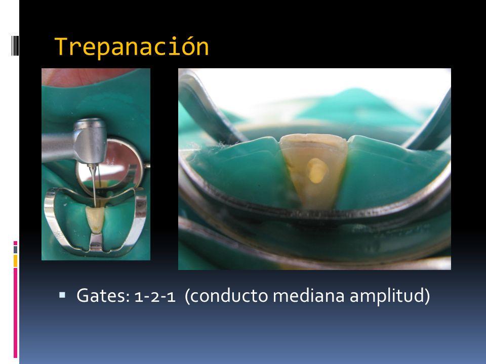 Trepanación Gates: 1-2-1 (conducto mediana amplitud)