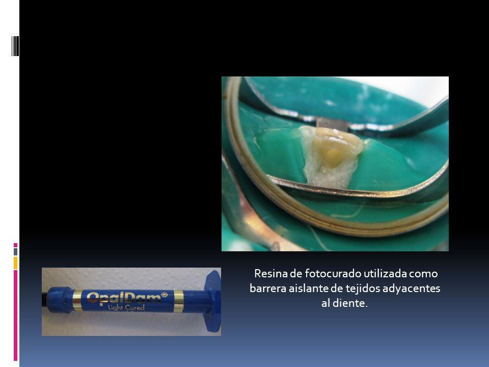 Resina de fotocurado utilizada como barrera aislante de tejidos adyacentes al diente.