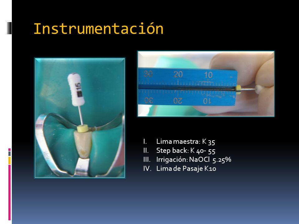 Instrumentación I.Lima maestra: K 35 II.Step back: K 40- 55 III.Irrigación: NaOCl 5.25% IV.Lima de Pasaje K10
