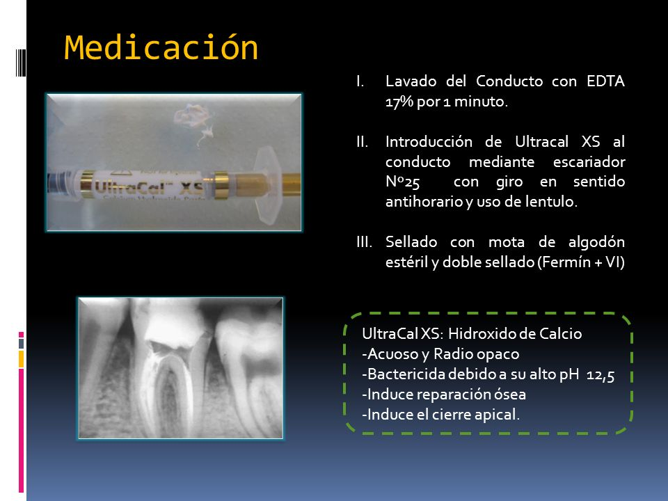 Medicación UltraCal XS: Hidroxido de Calcio -Acuoso y Radio opaco -Bactericida debido a su alto pH 12,5 -Induce reparación ósea -Induce el cierre apic