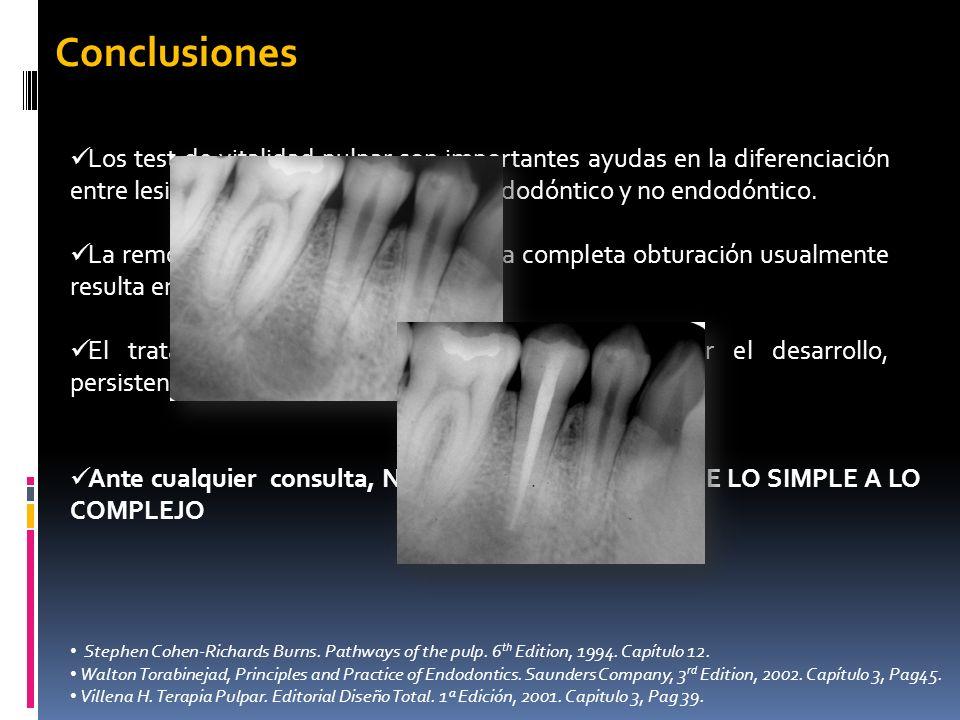 Los test de vitalidad pulpar son importantes ayudas en la diferenciación entre lesiones periapicales de origen endodóntico y no endodóntico. La remoci