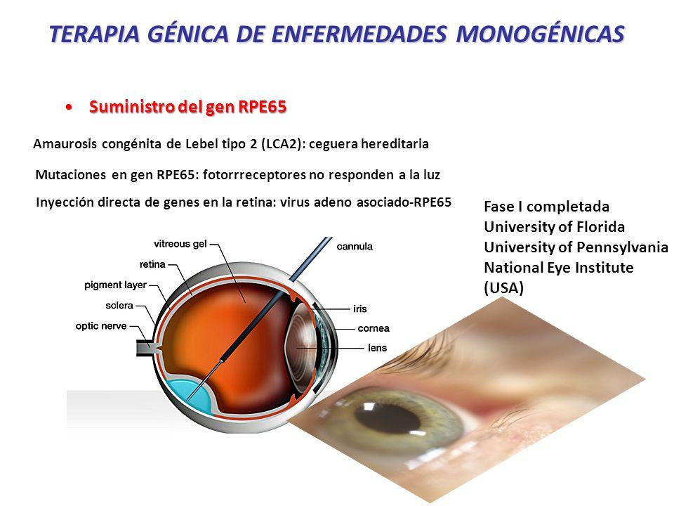 Amaurosis congénita de Lebel tipo 2 (LCA2): ceguera hereditaria Inyección directa de genes en la retina: virus adeno asociado-RPE65 Mutaciones en gen RPE65: fotorrreceptores no responden a la luz Suministro del gen RPE65Suministro del gen RPE65 Fase I completada University of Florida University of Pennsylvania National Eye Institute (USA) TERAPIA GÉNICA DE ENFERMEDADES MONOGÉNICAS