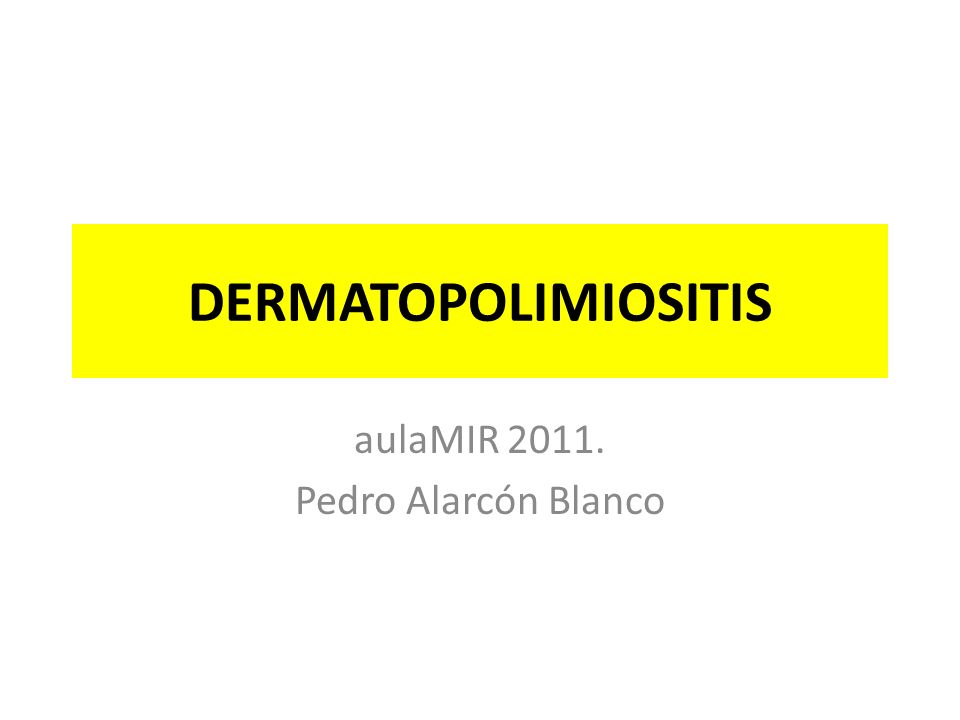 DERMATOPOLIMIOSITIS aulaMIR 2011. Pedro Alarcón Blanco