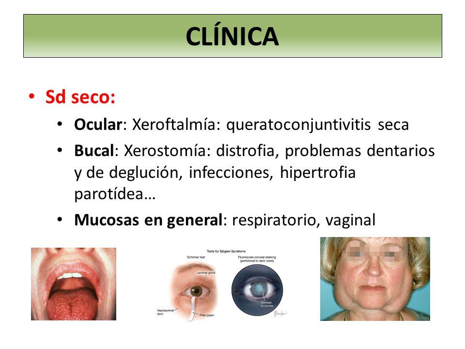 Sd seco: Ocular: Xeroftalmía: queratoconjuntivitis seca Bucal: Xerostomía: distrofia, problemas dentarios y de deglución, infecciones, hipertrofia par