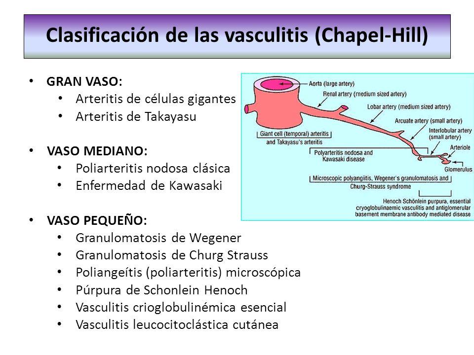 GRAN VASO: Arteritis de células gigantes Arteritis de Takayasu VASO MEDIANO: Poliarteritis nodosa clásica Enfermedad de Kawasaki VASO PEQUEÑO: Granulo