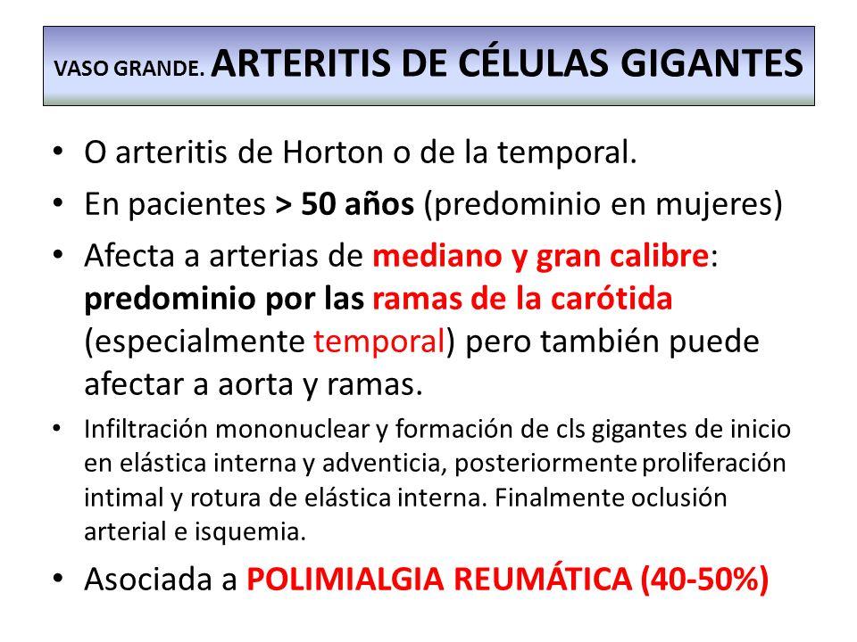 O arteritis de Horton o de la temporal. En pacientes > 50 años (predominio en mujeres) Afecta a arterias de mediano y gran calibre: predominio por las