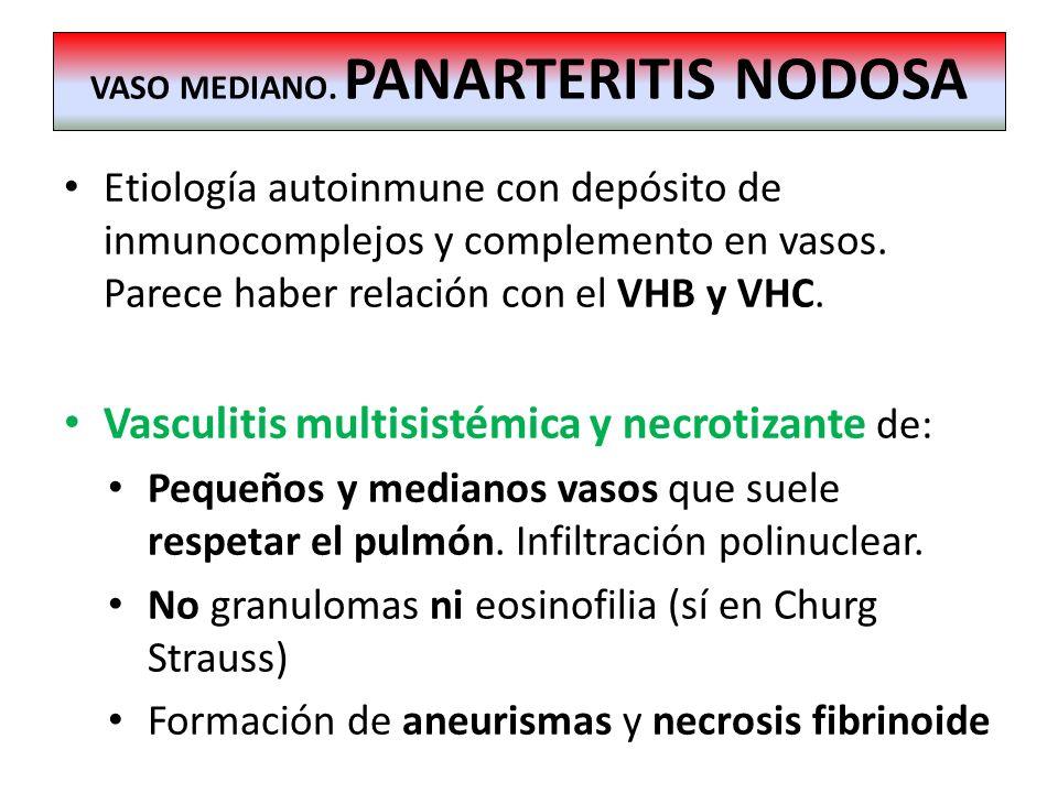 Etiología autoinmune con depósito de inmunocomplejos y complemento en vasos. Parece haber relación con el VHB y VHC. Vasculitis multisistémica y necro