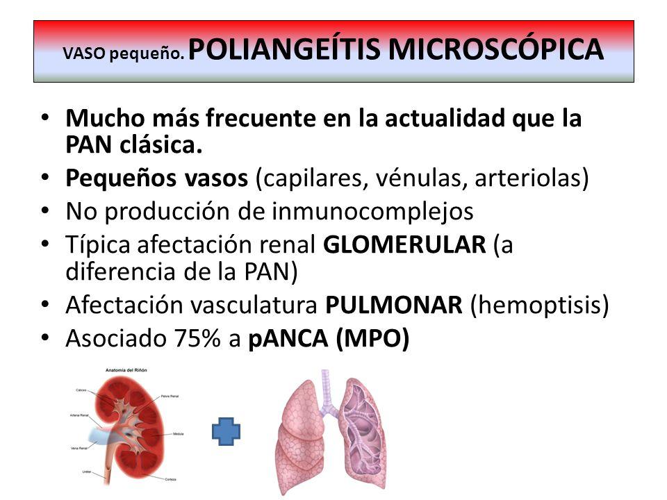 Mucho más frecuente en la actualidad que la PAN clásica. Pequeños vasos (capilares, vénulas, arteriolas) No producción de inmunocomplejos Típica afect