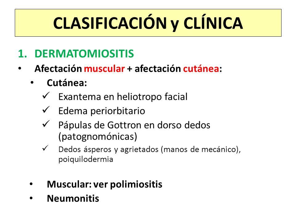 1.DERMATOMIOSITIS Afectación muscular + afectación cutánea: Cutánea: Exantema en heliotropo facial Edema periorbitario Pápulas de Gottron en dorso ded