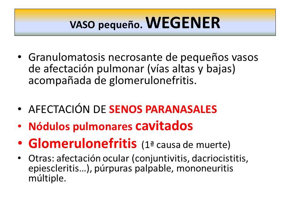 Granulomatosis necrosante de pequeños vasos de afectación pulmonar (vías altas y bajas) acompañada de glomerulonefritis. AFECTACIÓN DE SENOS PARANASAL