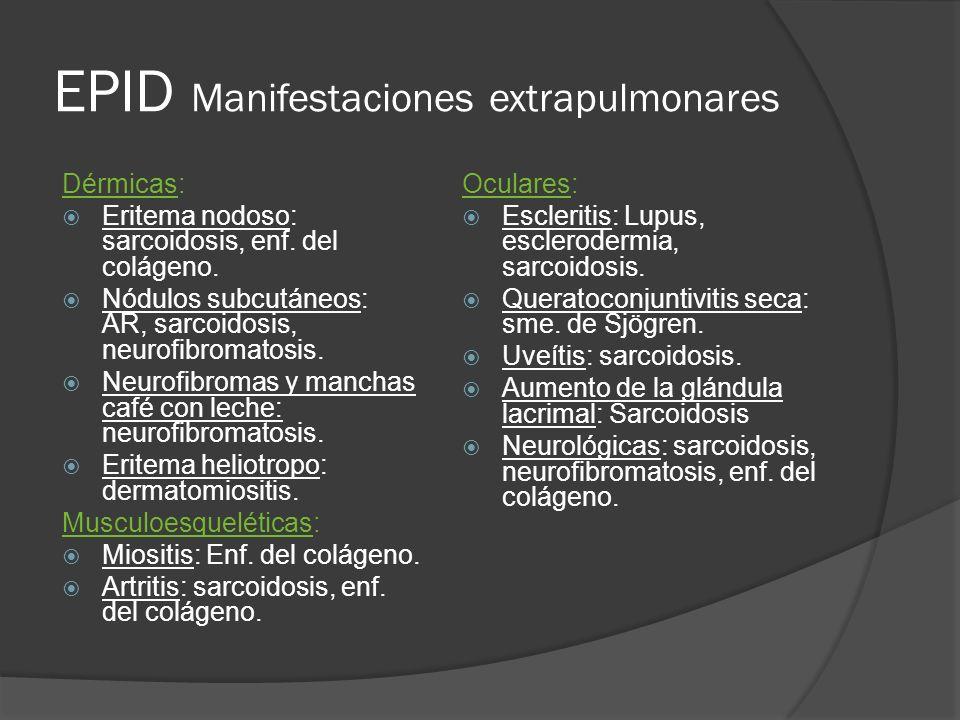 EPID Manifestaciones extrapulmonares Dérmicas: Eritema nodoso: sarcoidosis, enf. del colágeno. Nódulos subcutáneos: AR, sarcoidosis, neurofibromatosis