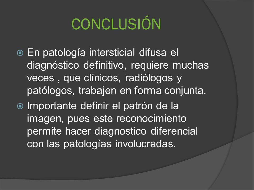 CONCLUSIÓN En patología intersticial difusa el diagnóstico definitivo, requiere muchas veces, que clínicos, radiólogos y patólogos, trabajen en forma