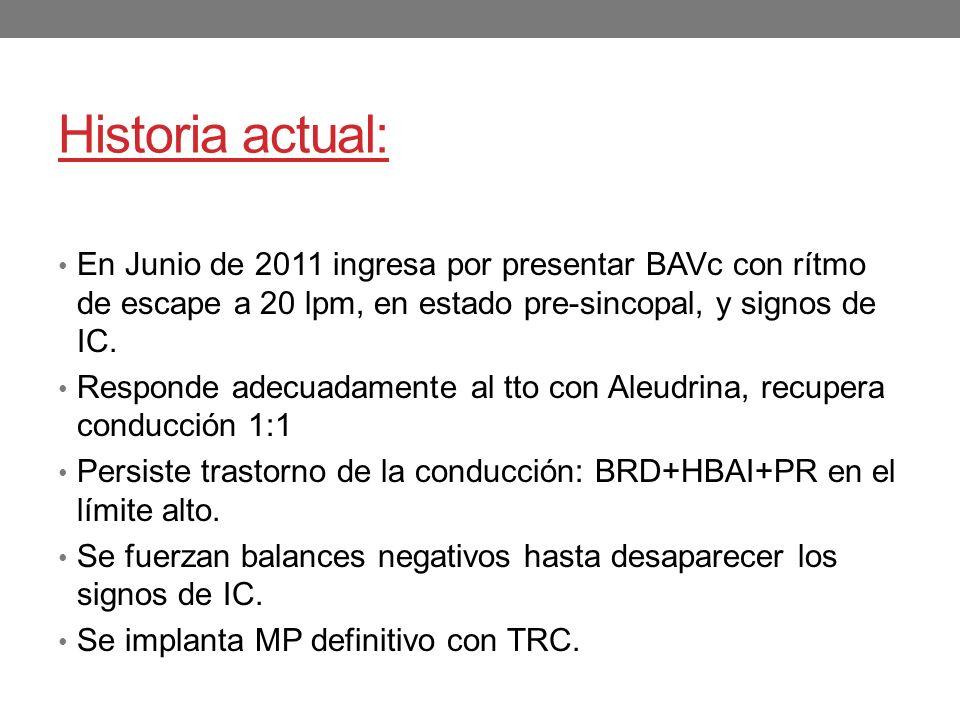 Historia actual: En Junio de 2011 ingresa por presentar BAVc con rítmo de escape a 20 lpm, en estado pre-sincopal, y signos de IC. Responde adecuadame