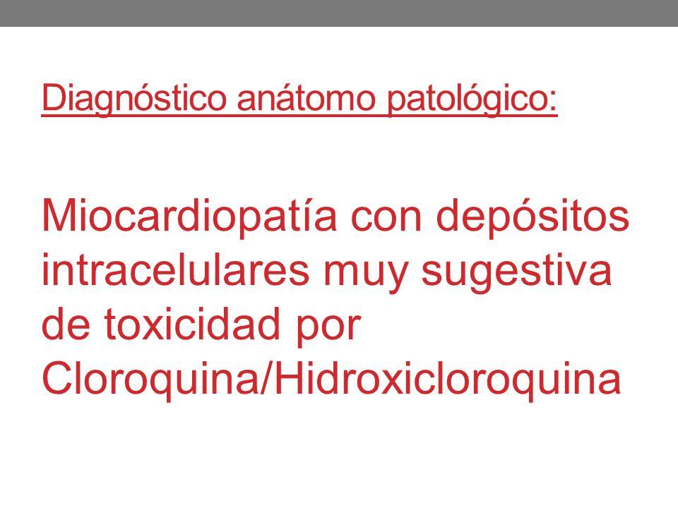 Diagnóstico anátomo patológico: Miocardiopatía con depósitos intracelulares muy sugestiva de toxicidad por Cloroquina/Hidroxicloroquina
