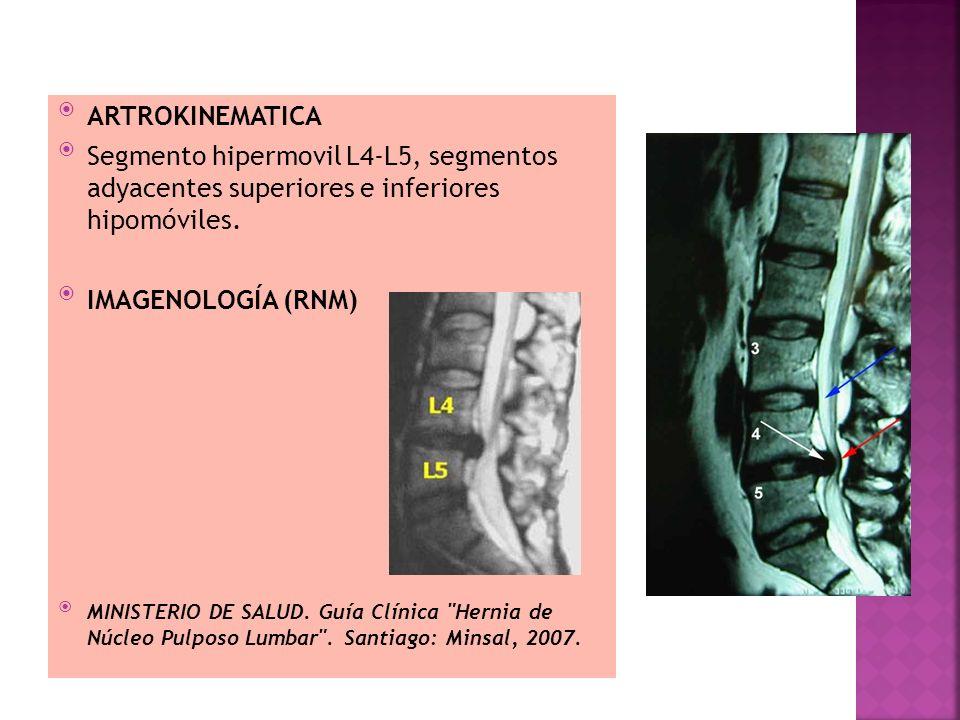 ARTROKINEMATICA Segmento hipermovil L4-L5, segmentos adyacentes superiores e inferiores hipomóviles. IMAGENOLOGÍA (RNM) MINISTERIO DE SALUD. Guía Clín