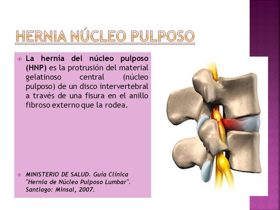La hernia del núcleo pulposo (HNP) es la protrusión del material gelatinoso central (núcleo pulposo) de un disco intervertebral a través de una fisura
