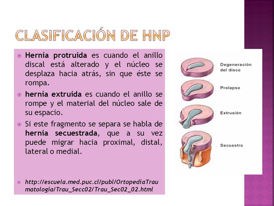 Hernia protruida es cuando el anillo discal está alterado y el núcleo se desplaza hacia atrás, sin que éste se rompa. hernia extruida es cuando el ani