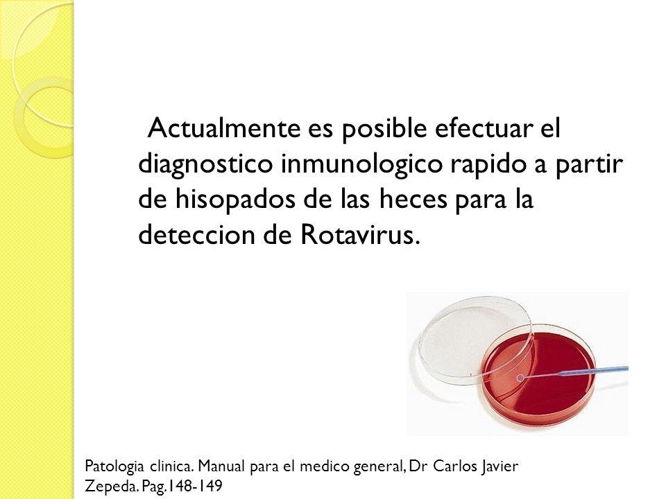 Actualmente es posible efectuar el diagnostico inmunologico rapido a partir de hisopados de las heces para la deteccion de Rotavirus. Patologia clinic