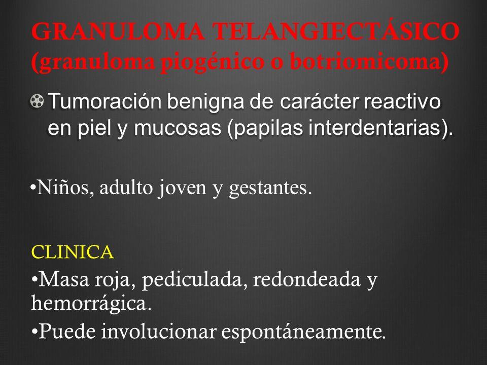 GRANULOMA TELANGIECTÁSICO (granuloma piogénico o botriomicoma) Tumoración benigna de carácter reactivo en piel y mucosas (papilas interdentarias). Niñ