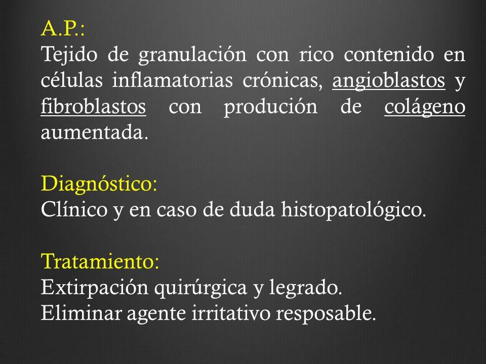 A.P.: Tejido de granulación con rico contenido en células inflamatorias crónicas, angioblastos y fibroblastos con produción de colágeno aumentada. Dia