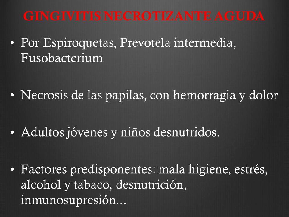 GINGIVITIS NECROTIZANTE AGUDA Por Espiroquetas, Prevotela intermedia, Fusobacterium Necrosis de las papilas, con hemorragia y dolor Adultos jóvenes y