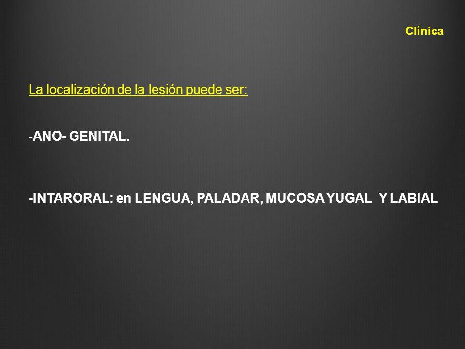 La localización de la lesión puede ser: -ANO- GENITAL. -INTARORAL: en LENGUA, PALADAR, MUCOSA YUGAL Y LABIAL Clínica