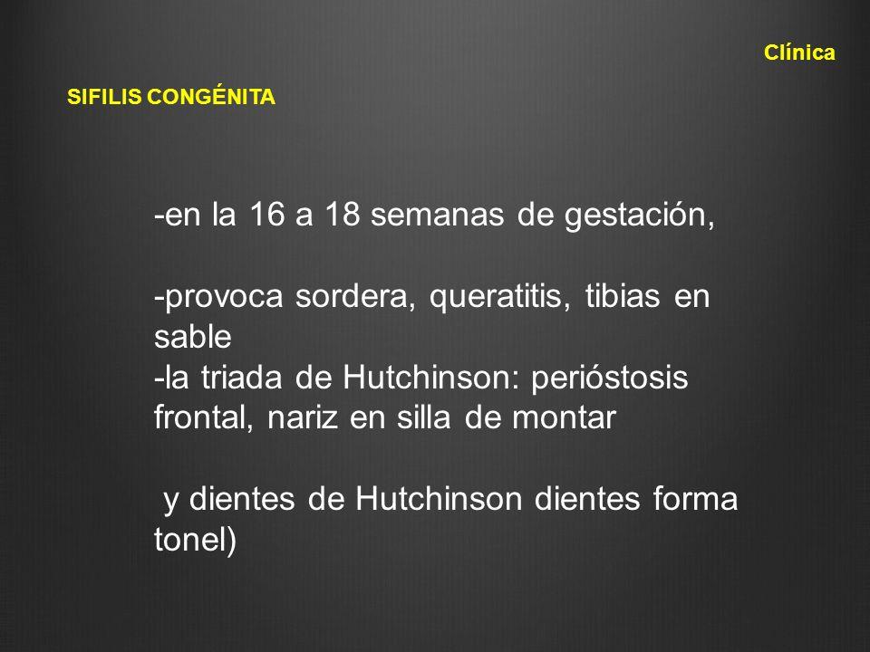 SIFILIS CONGÉNITA Clínica -en la 16 a 18 semanas de gestación, -provoca sordera, queratitis, tibias en sable -la triada de Hutchinson: perióstosis fro