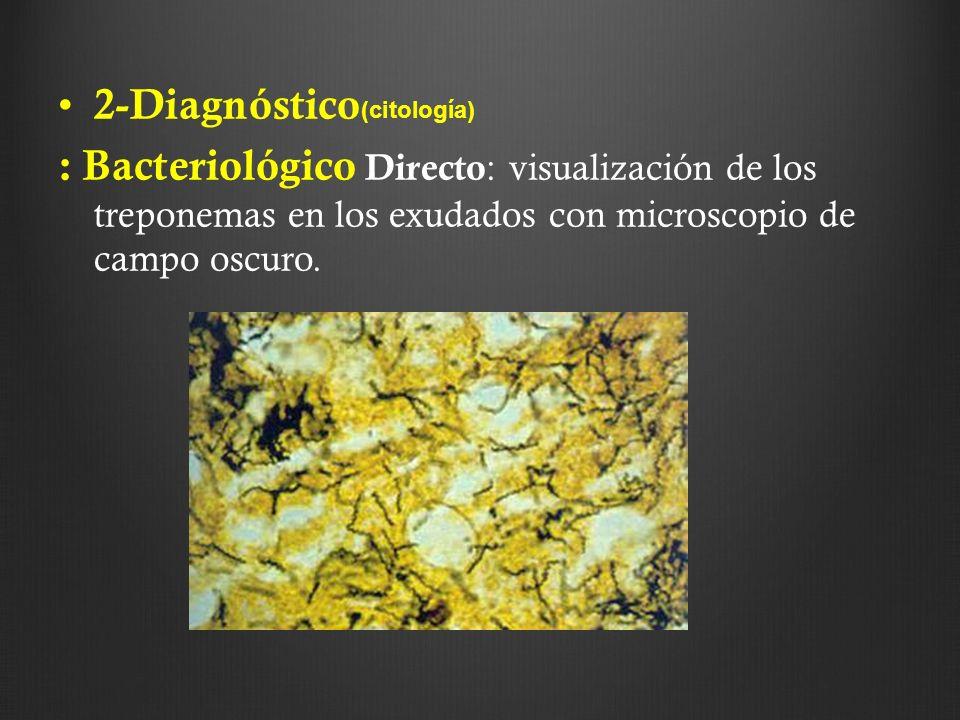 2-Diagnóstico (citología) : Bacteriológico Directo : visualización de los treponemas en los exudados con microscopio de campo oscuro.
