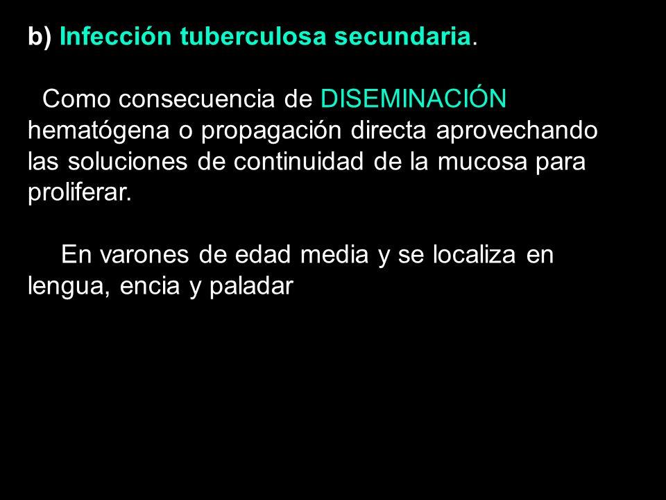TUBERCULOSIS b) Infección tuberculosa secundaria. Como consecuencia de DISEMINACIÓN hematógena o propagación directa aprovechando las soluciones de co