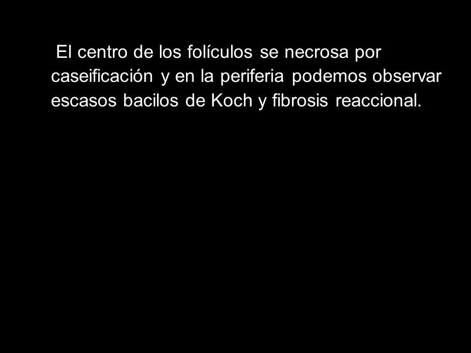 El centro de los folículos se necrosa por caseificación y en la periferia podemos observar escasos bacilos de Koch y fibrosis reaccional.