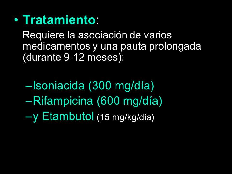 Tratamiento: Requiere la asociación de varios medicamentos y una pauta prolongada (durante 9-12 meses): –Isoniacida (300 mg/día) –Rifampicina (600 mg/