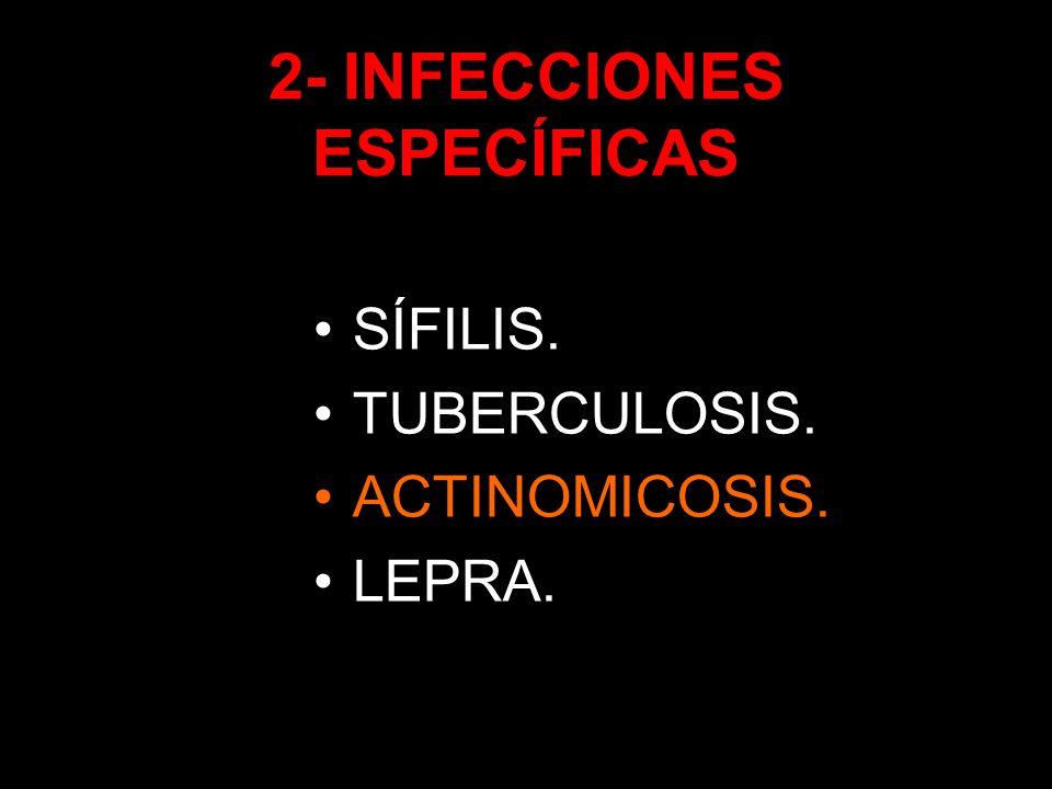 2- INFECCIONES ESPECÍFICAS SÍFILIS. TUBERCULOSIS. ACTINOMICOSIS. LEPRA.