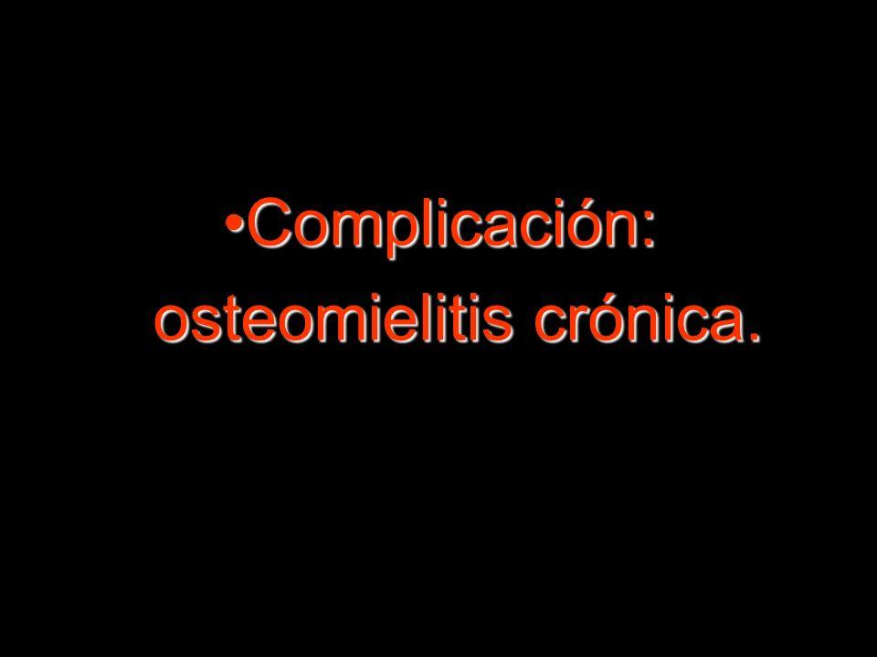 Complicación:Complicación: osteomielitis crónica. osteomielitis crónica.