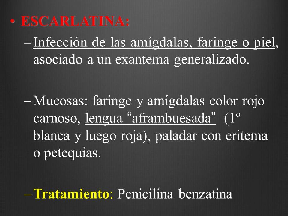 ESCARLATINA:ESCARLATINA: –Infección de las amígdalas, faringe o piel, asociado a un exantema generalizado. –Mucosas: faringe y amígdalas color rojo ca