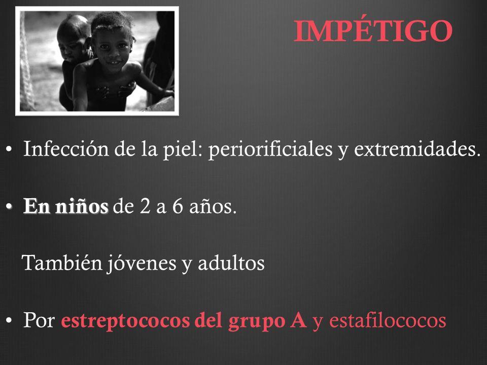 Diagnóstico: Serológico Indirecto : pruebas serológicas para detectar anticuerpos frente a treponema: – Inespecíficas (lípidos del treponema) Aglutinación y Fijación del complemento.