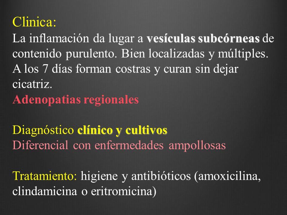 Clinica: vesículas subcórneas La inflamación da lugar a vesículas subcórneas de contenido purulento. Bien localizadas y múltiples. A los 7 días forman