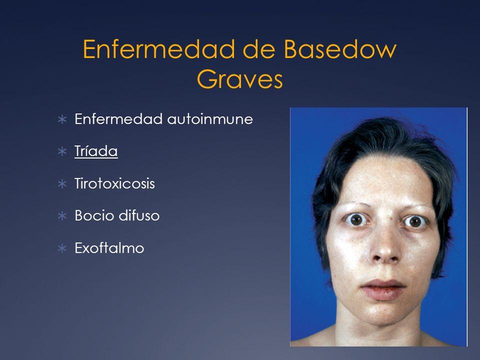 Enfermedad de Basedow Graves Enfermedad autoinmune Tríada Tirotoxicosis Bocio difuso Exoftalmo