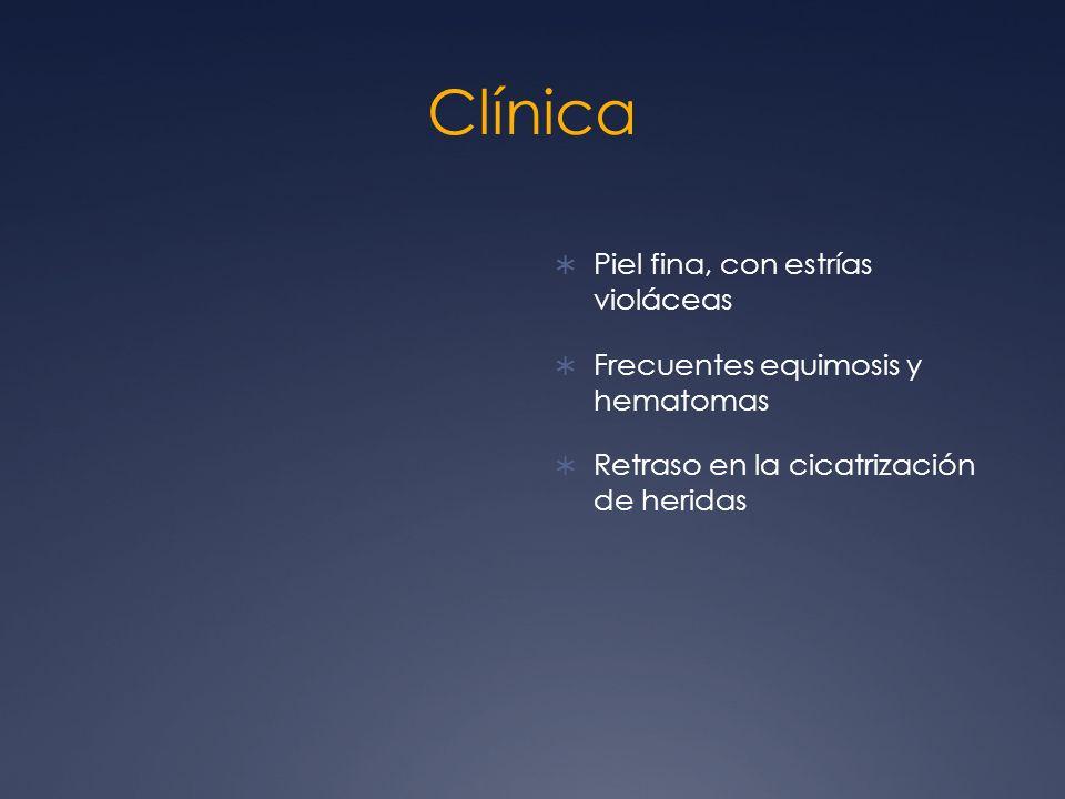 Clínica Piel fina, con estrías violáceas Frecuentes equimosis y hematomas Retraso en la cicatrización de heridas