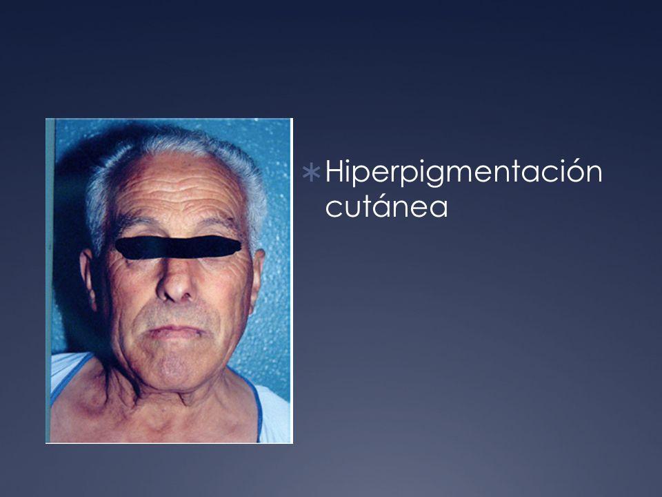Hiperpigmentación cutánea