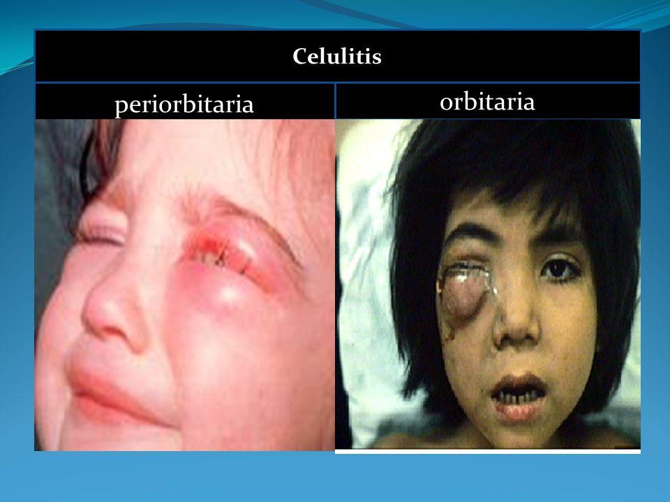 Celulitis periorbitaria orbitaria