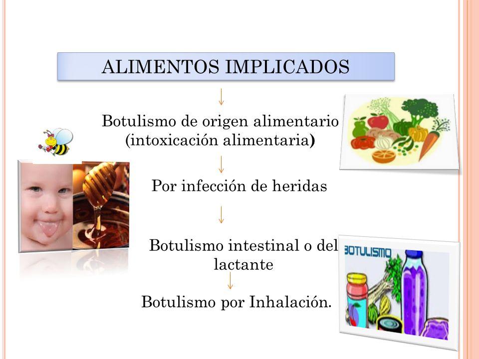 ALIMENTOS IMPLICADOS Botulismo de origen alimentario (intoxicación alimentaria ) Botulismo intestinal o del lactante Por infección de heridas Botulism
