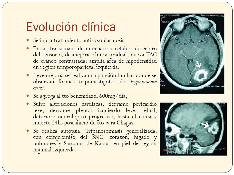 Evolución clínica Se inicia tratamiento antitoxoplasmosis En su 1ra semana de internación cefalea, deterioro del sensorio, desmejoría clínica gradual,