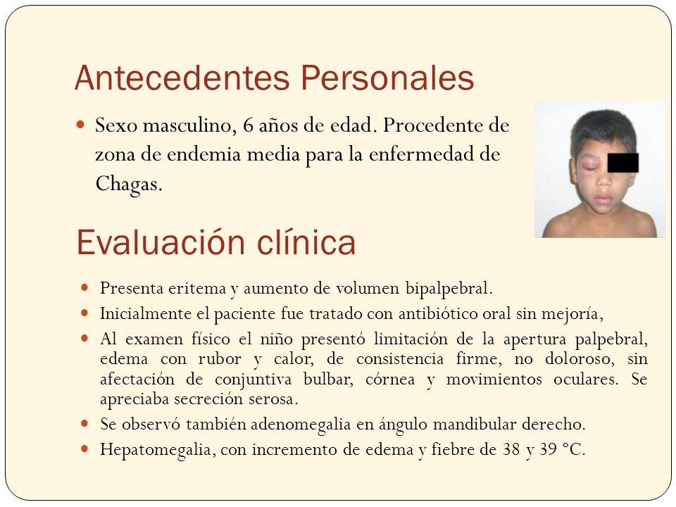 Antecedentes Personales Sexo masculino, 6 años de edad. Procedente de zona de endemia media para la enfermedad de Chagas. Evaluación clínica Presenta