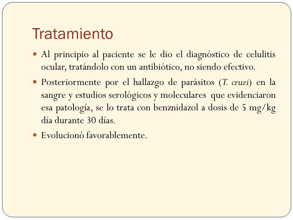 Tratamiento Al principio al paciente se le dio el diagnóstico de celulitis ocular, tratándolo con un antibiótico, no siendo efectivo. Posteriormente p
