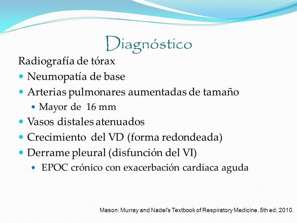 Diagnóstico Radiografía de tórax Neumopatía de base Arterias pulmonares aumentadas de tamaño Mayor de 16 mm Vasos distales atenuados Crecimiento del V